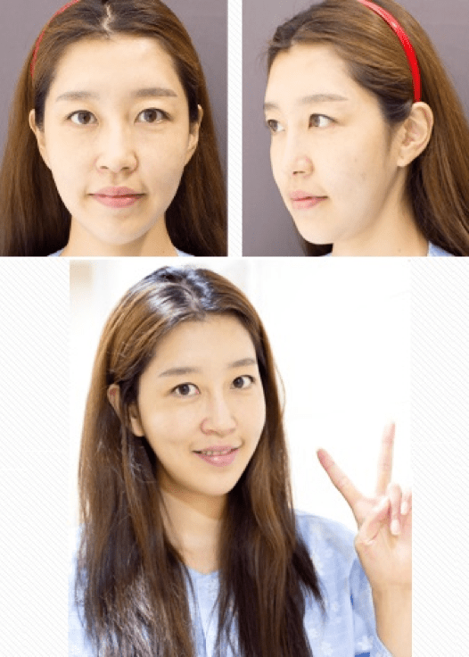 Fat Grafting, Facial Contouring, Rhinoplasty Before & After