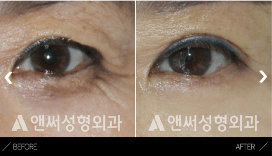 Upper Blepharoplasty in Korea