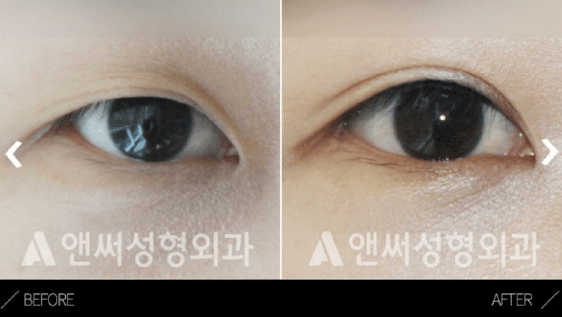 Lateral Canthoplasty in Korea