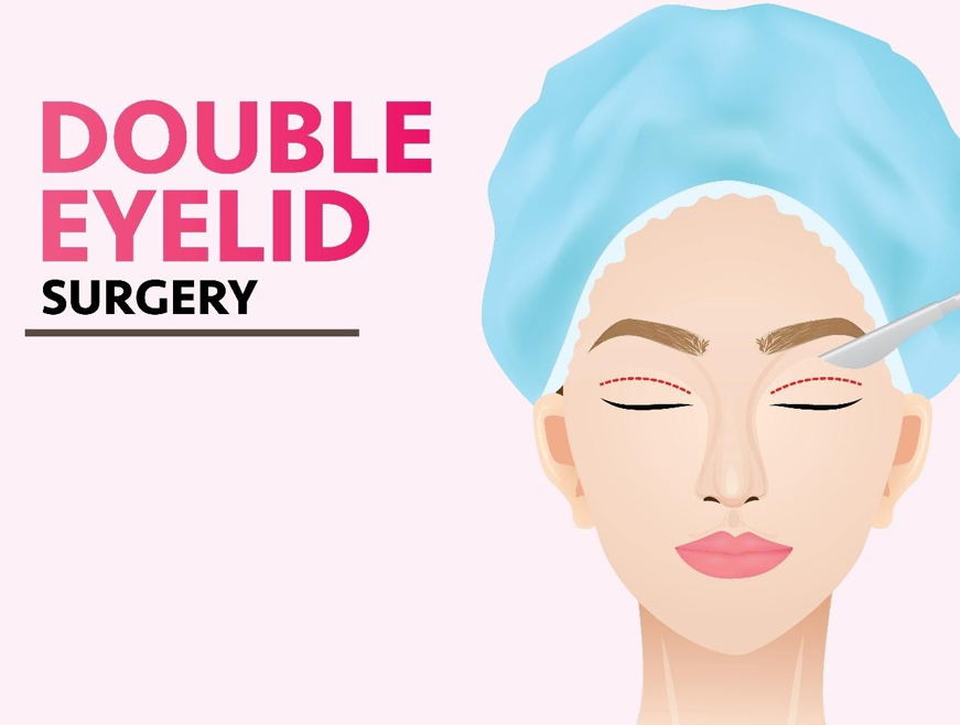 Double Eyelid Surgery in Korea - Definition, Procedure, Benefits, Recovery, Before and After